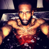 Amar'e Stoudemire takes red wine bath to recover on off day
